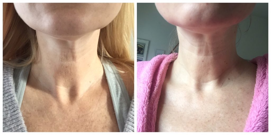 Retin-A neck wrinkles lines before after